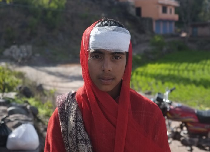 Hifsa, 13, was injured by shelling in Pakistan-controlled Kashmir.