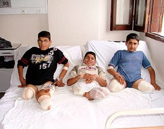 Maimed Palestinian children
